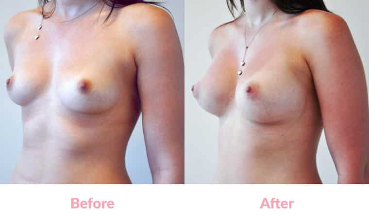 Patient SB before and after, breast implants, dr mayson, breast excellence, australia