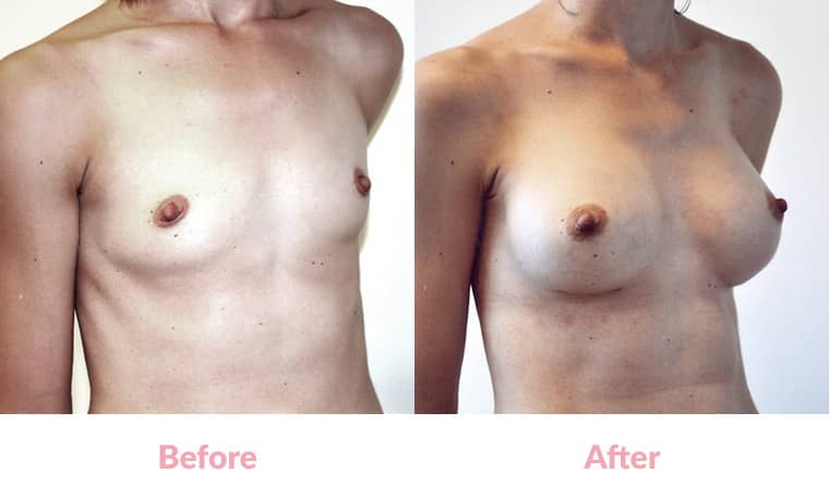 Patient TJbefore and after, breast implants, dr mayson, breast excellence, australia