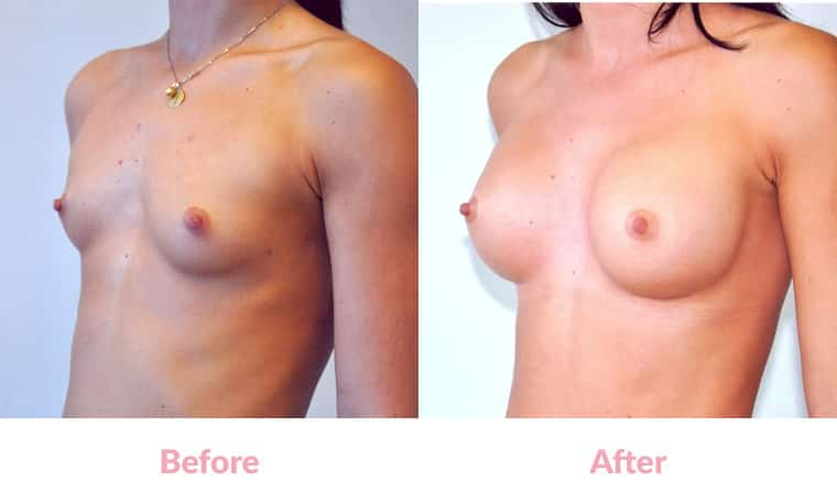 Patient MD before and after, breast implants, dr mayson, breast excellence, australia