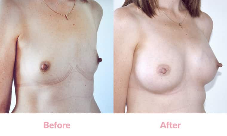 Patient GJ before and after, breast implants, dr mayson, breast excellence, australia