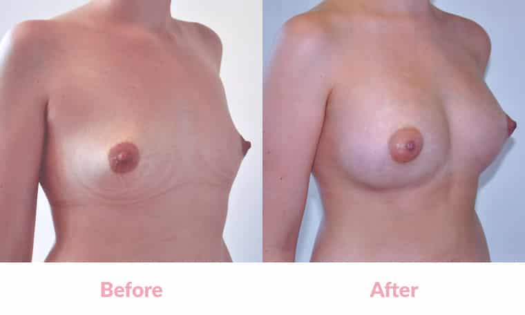 Patient DD before and after, breast implants, dr mayson, breast excellence, australia