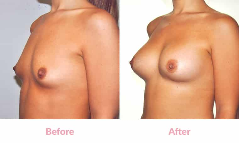 Patient PM before and after, breast implants, dr mayson, breast excellence, australia