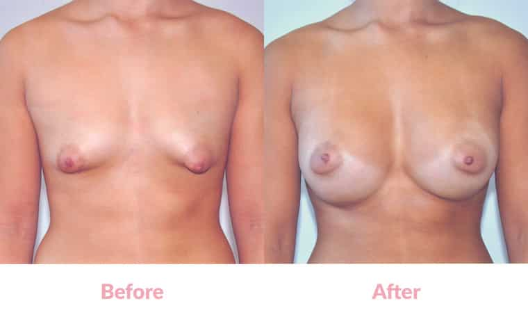 Patient EJ before and after, breast implants, dr mayson, breast excellence, australia