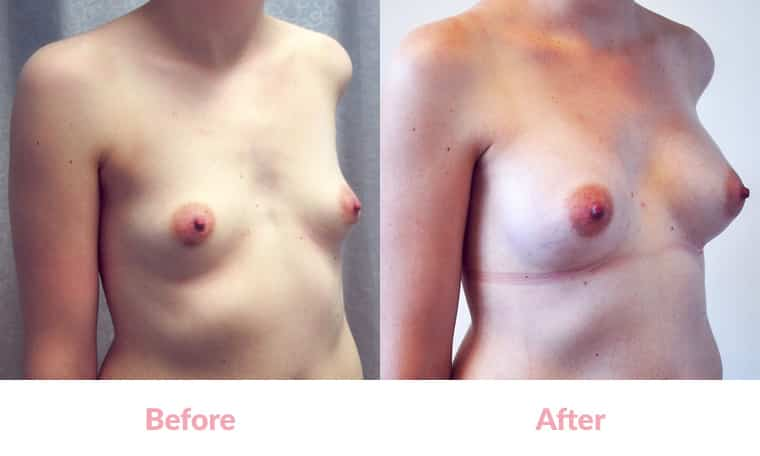 Patient BC before and after, breast implants, dr mayson, breast excellence, australia