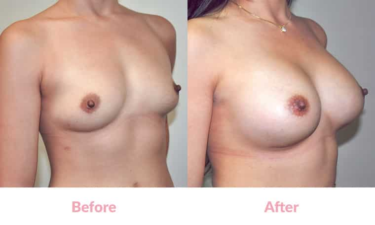 Patient FJ before and after, breast implants, dr mayson, breast excellence, australia