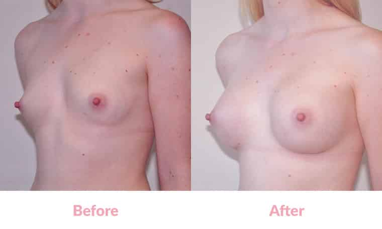 Patient WM before and after, breast implants, dr mayson, breast excellence, australia
