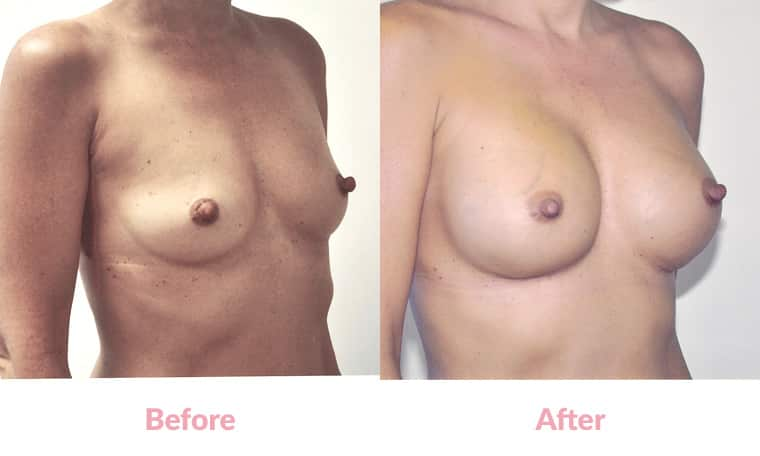 Patient BG before and after, breast implants, dr mayson, breast excellence, australia