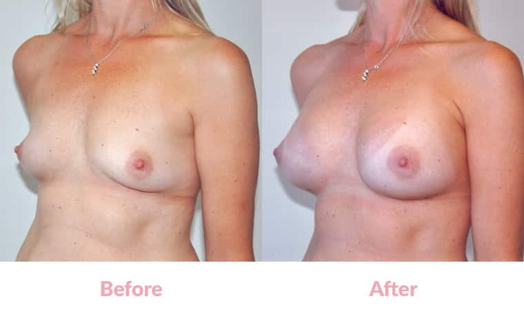 Patient CS before and after, breast implants, dr mayson, breast excellence, australia