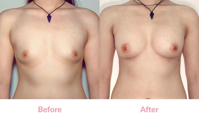 Patient KM before and after, breast implants, dr mayson, breast excellence, australia