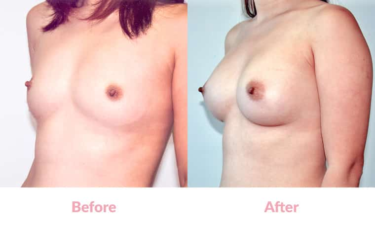 Breast Augmentation Asian 80