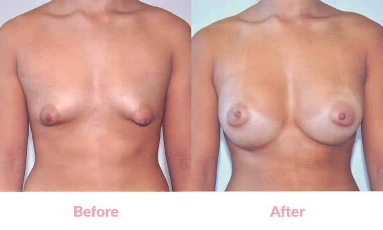 Breast Augmentation Asian 5