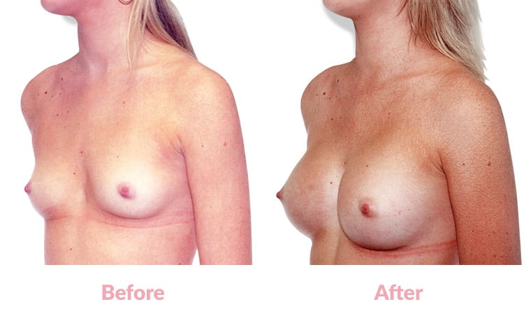 Patient WT before and after, breast implants, dr mayson, breast excellence, australia