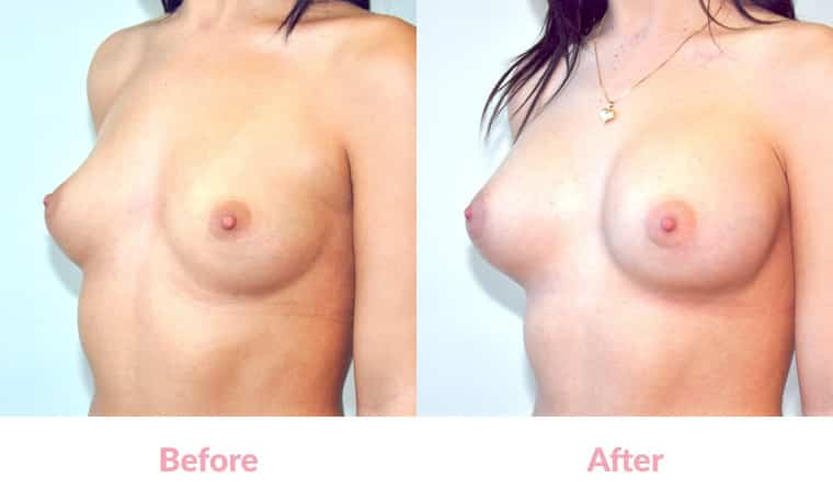 Patient RE before and after, breast implants, dr mayson, breast excellence, australia