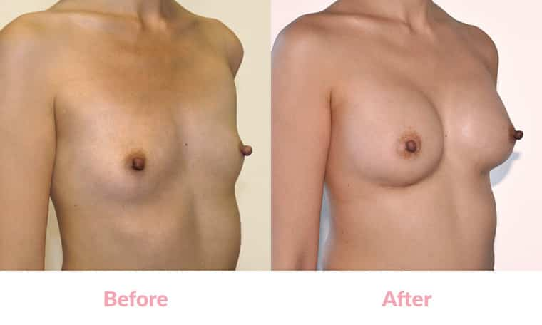 before and after, breast implants, dr mayson, breast excellence, australia