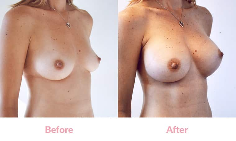 Patient HG before and after, breast implants, dr mayson, breast excellence, australia