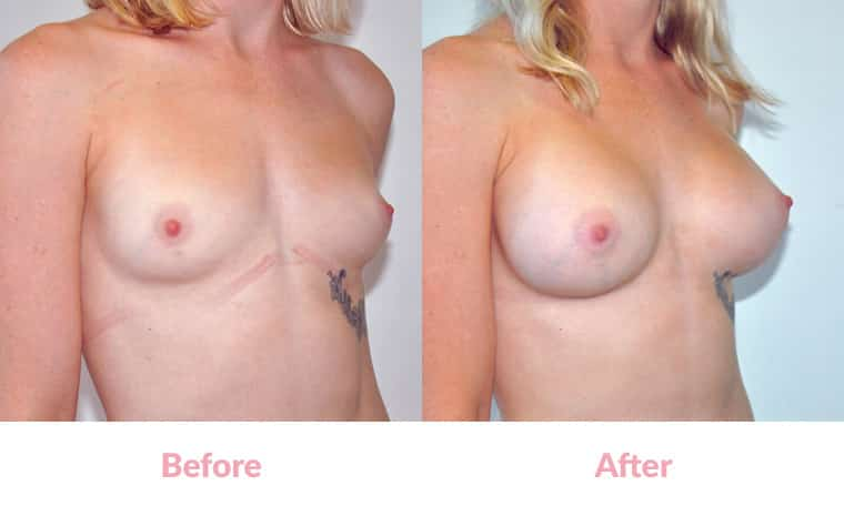 Patient FL before and after, breast implants, dr mayson, breast excellence, australia