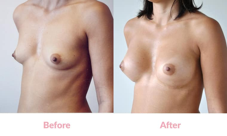 Patient ED before and after, breast implants, dr mayson, breast excellence, australia