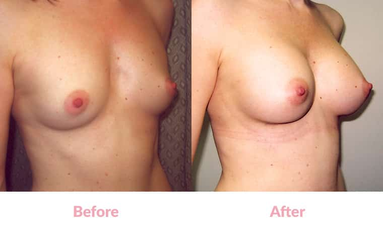 Patient WW before and after, breast implants, dr mayson, breast excellence, australia