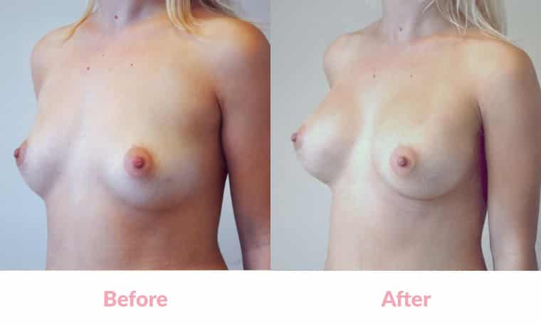 Patient MH before and after, breast implants, dr mayson, breast excellence, australia