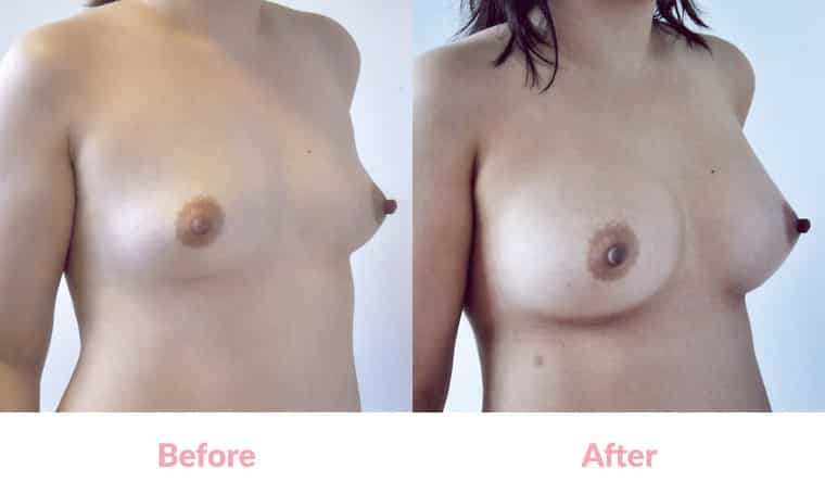 Patient VM before and after, breast implants, dr mayson, breast excellence, australia