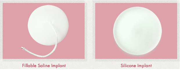 fillable saline and silicone implant