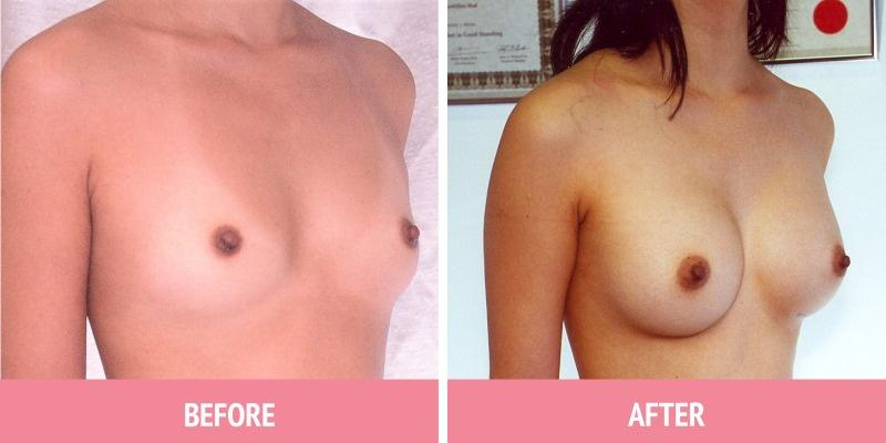 Patient HA 2 YEARS AFTER Round Silicone Implants, 200cc, 'Under the Muscle', Incisions under the Breasts